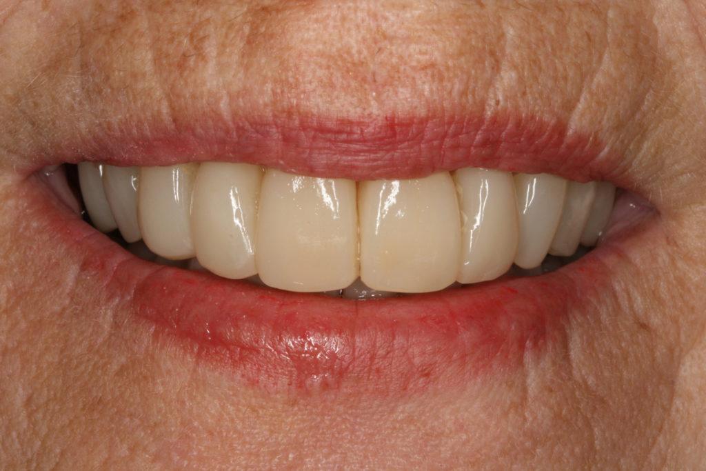 bidhæving tandlæge himmelev roskilde