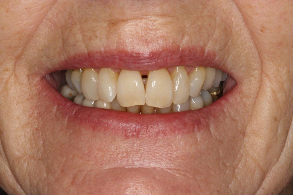 bidhævning himmelev roskilde tandlæge
