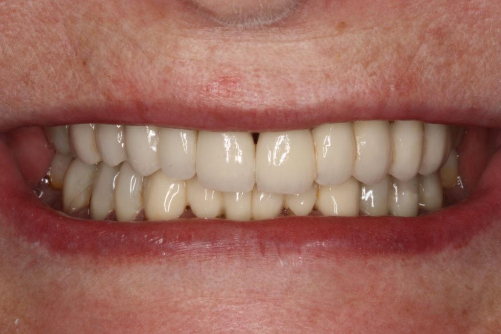 himmelev roskilde tandlæge bidhævning