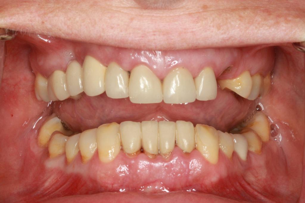 tandlæge himmelev roskilde bidhævning