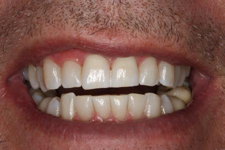 tandblegning resultat