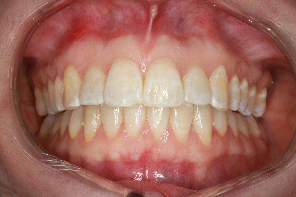 himmelev roskilde tandlæge tandretning