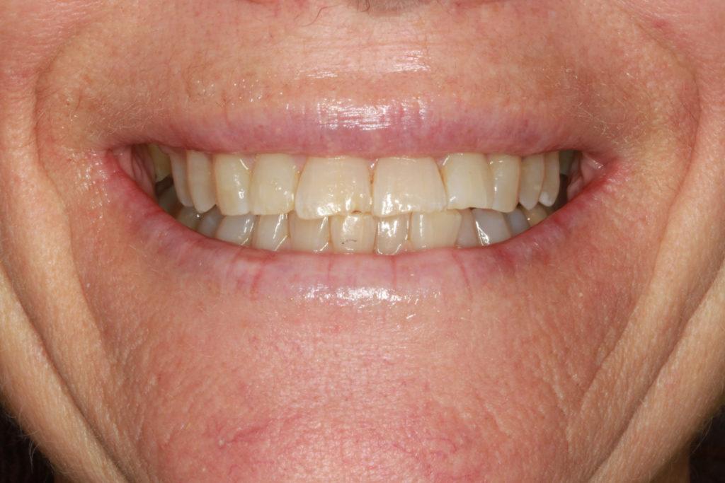 bidhævning tandlæge roskilde himmelev