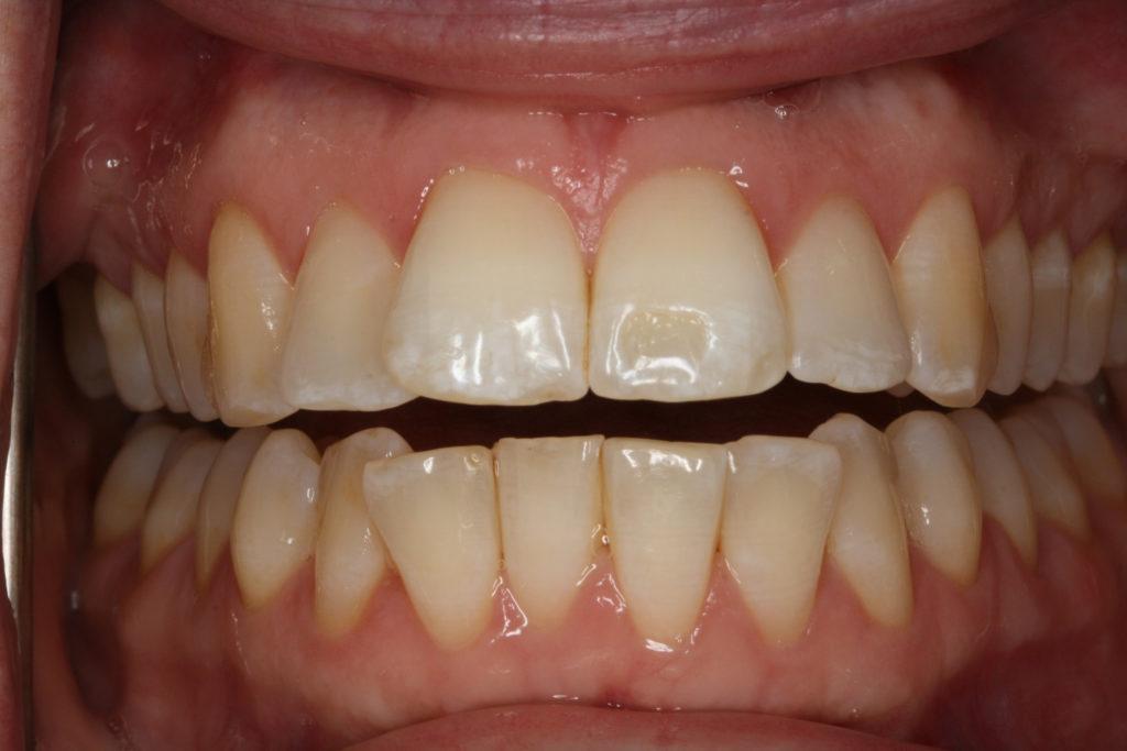 tandretning himmelev tandlægehus roskilde