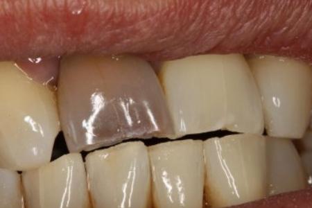 Intern tandblegning