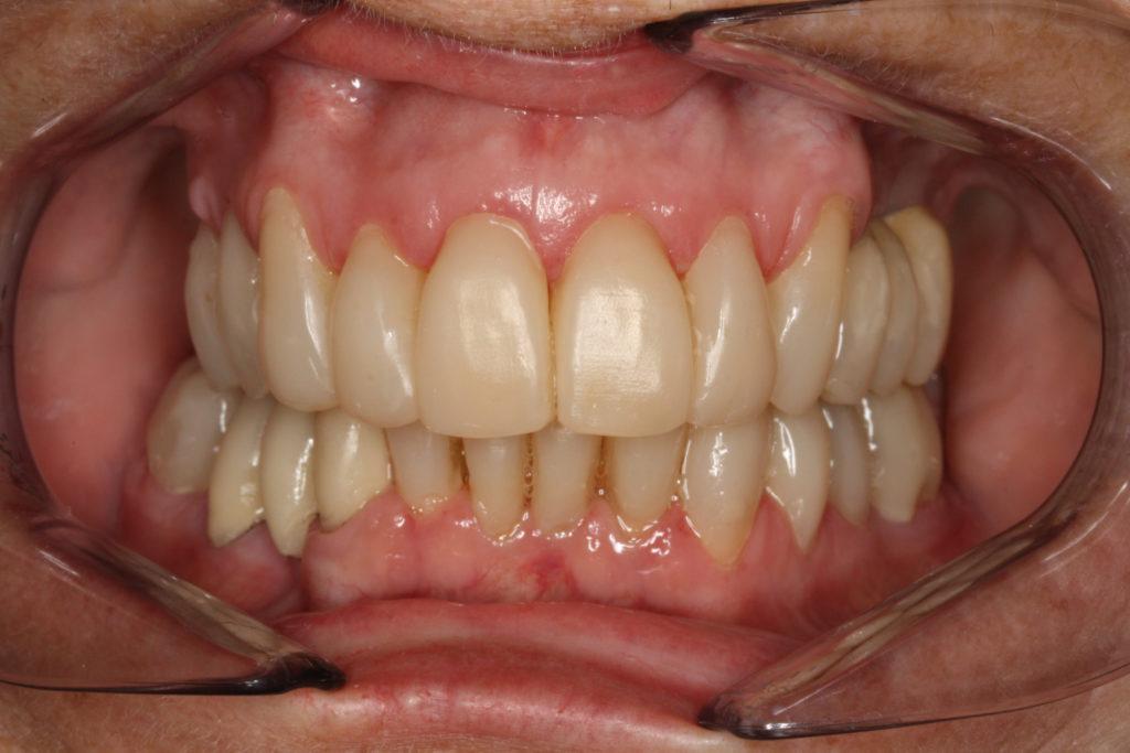 bidhævning himmelev tandlæge roskilde
