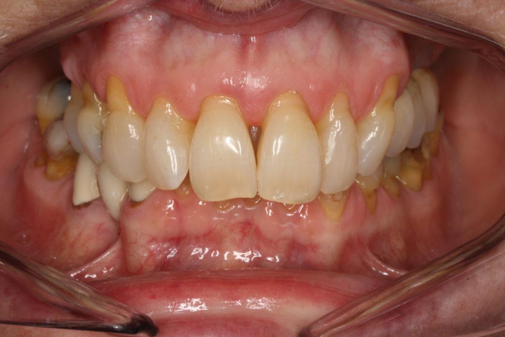 bidhævning roskilde tandlæge himmelev