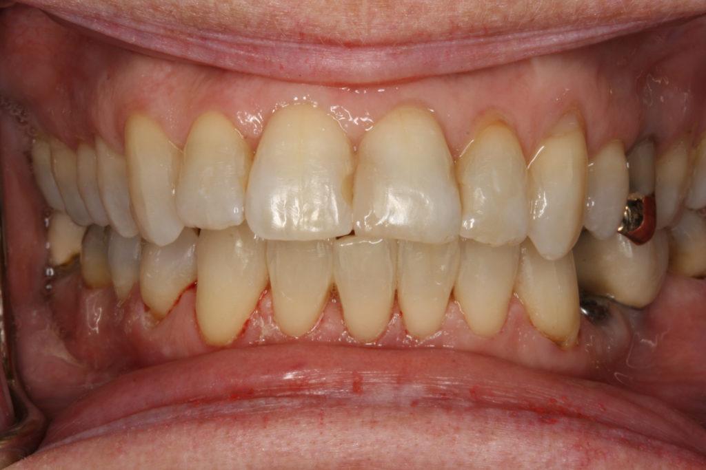 tandretning roskilde himmelev tandlæge