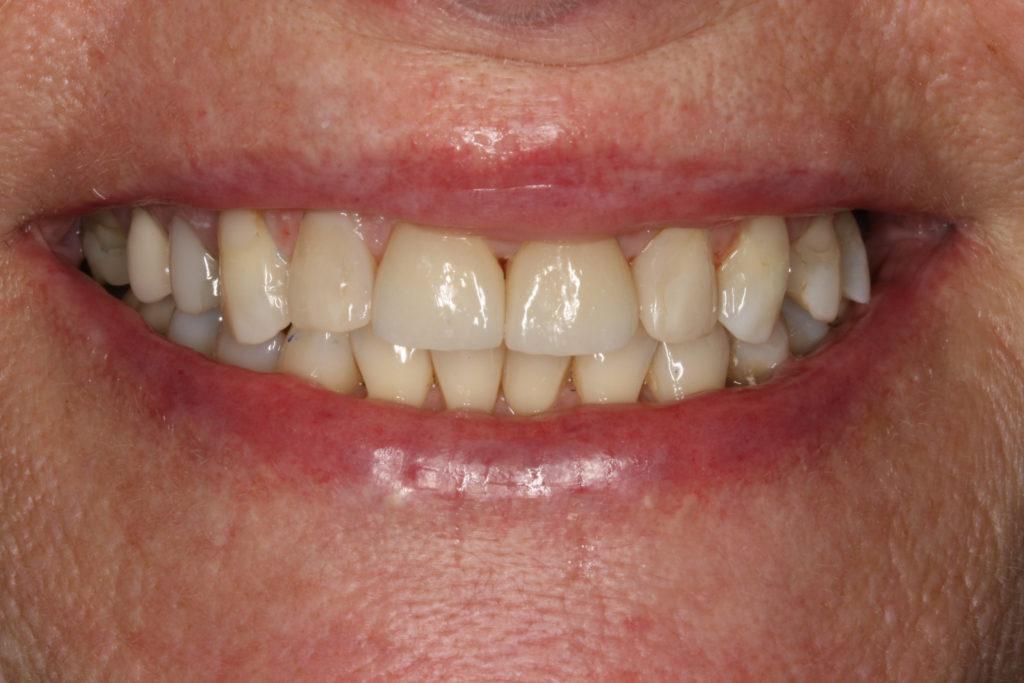 protetisk behandling roskilde himmelev tandlæge