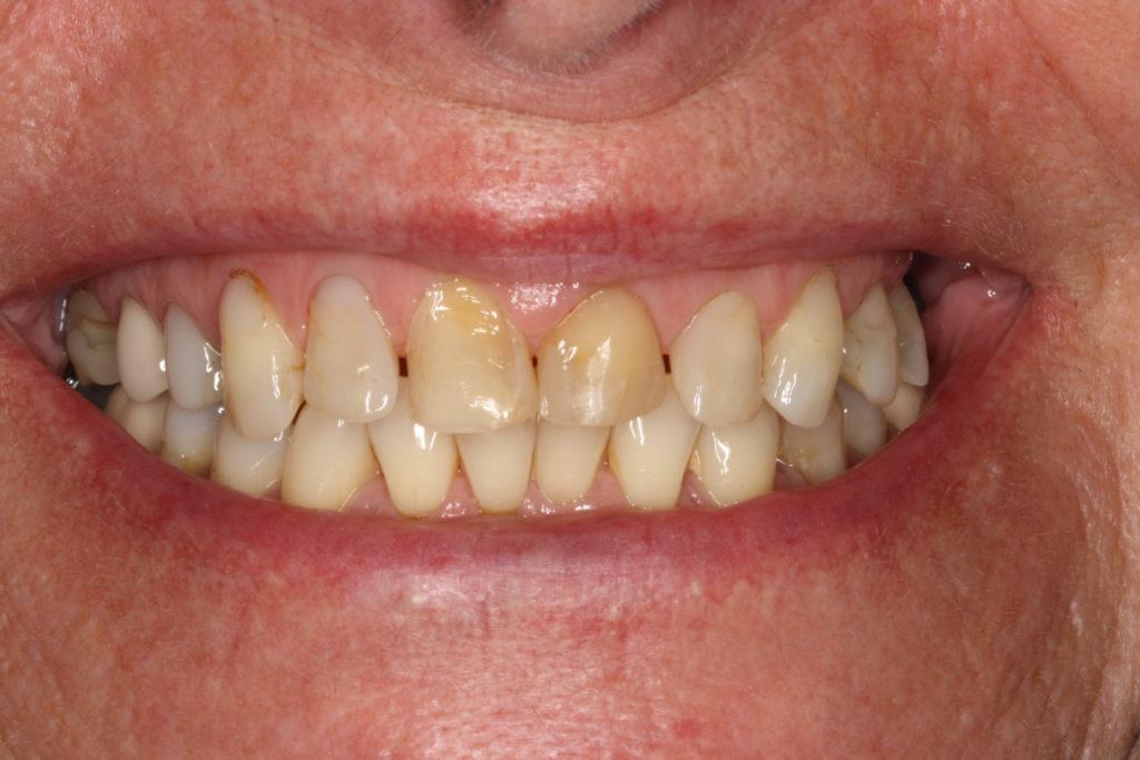 protetisk behandling tandlæge himmelev roskilde