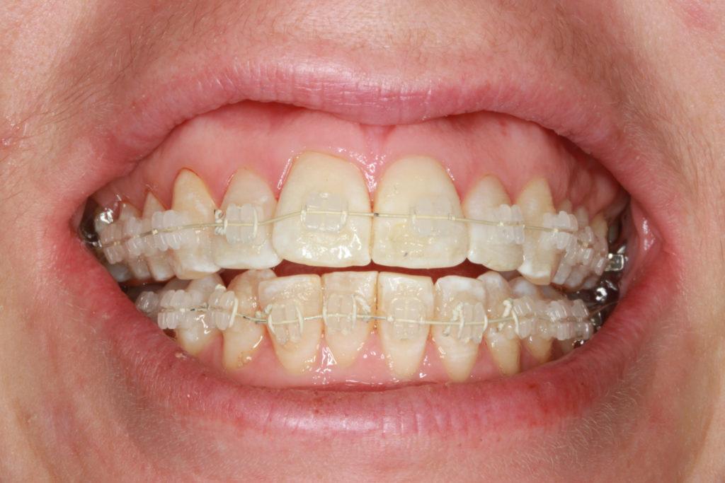 tandlæge himmelev roskilde tandretning