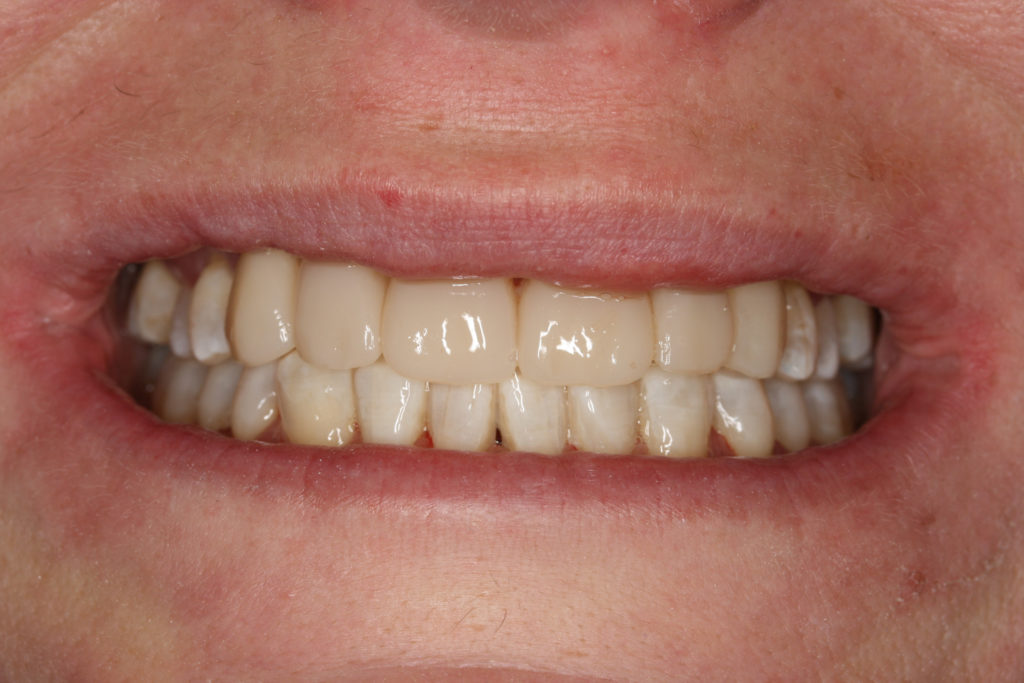 tandlæge roskilde himmelev