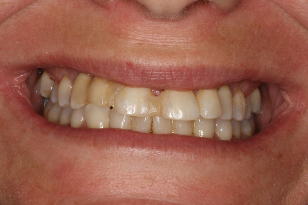 Roskilde tandlæge Himmelev